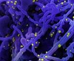 Regeneron's COVID-19 antibody-drug cocktail treats SARS-CoV-2 virus in animals