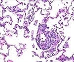 Regeneron antibody cocktail shows promise as potential COVID-19 treatment