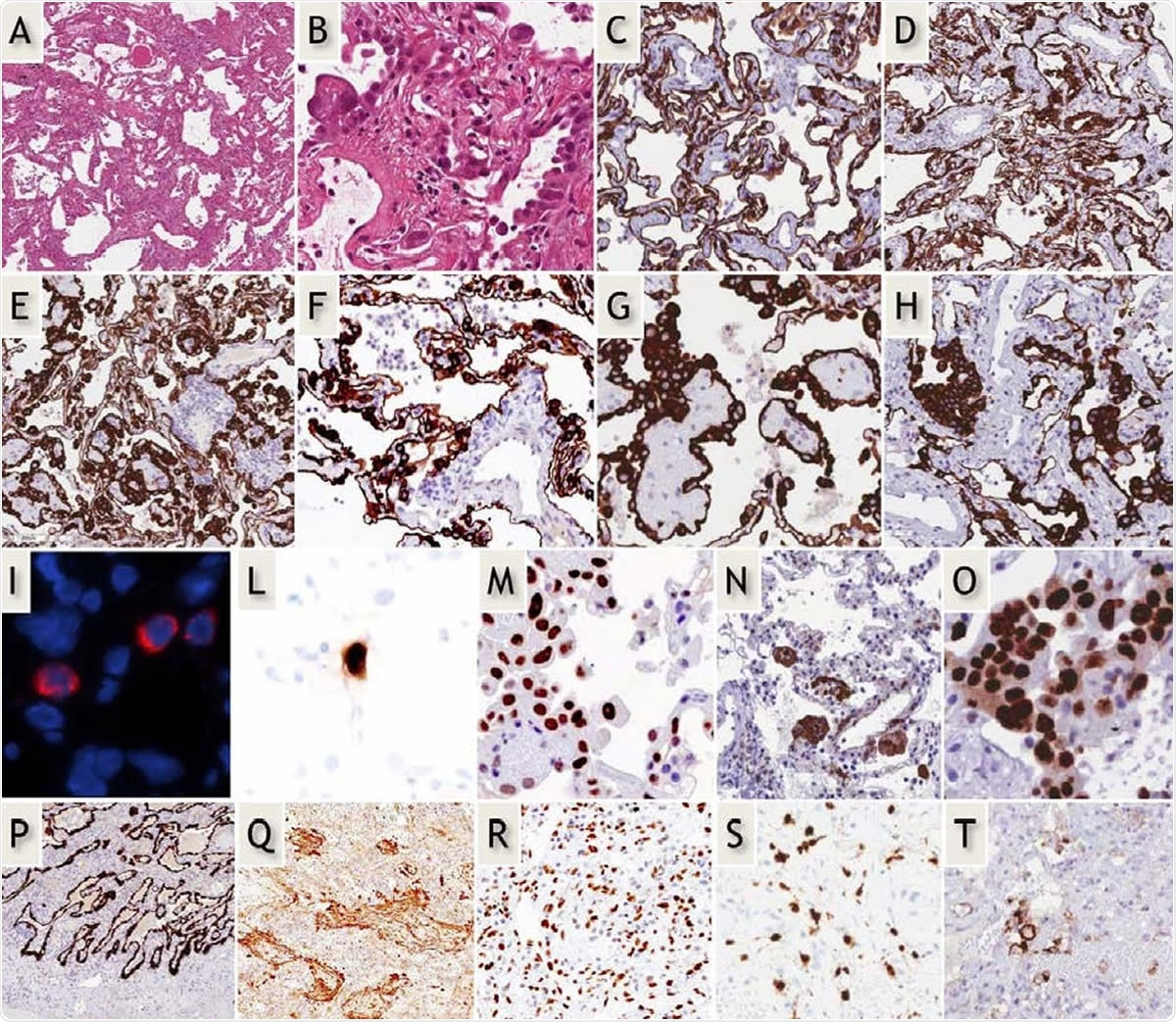 "Early-phase COVID-19 pneumonia. H&E (A,B): Parenchymal structure is variably altered by AECII hyperplasia, vascular enlargement and interstitial thickening. CK7 (G-H): AECII form variable small nodules, aggregates and pseudo-papillary sprouts. Grade-1 (C,D) and -2 (E-H) Covid-19 histological patterns were defined by the extent of AEC II hyperplasia. In situ demonstration of AECII infected by SARS-CoV-2 (I): cytoplasmic (red) signals are evidenced in scattered cells recognized as AECII by morphology and location. In situ analysis of IL-6 mRNA expression (L): strong signal is evidenced in scattered AECII. Ph-STAT3 immunohistochemistry (M): strong signal demonstrated in most AECII. TBB3 immunohistochemistry (N): strong signal in AECII. Interstitial dilated spaces are negative. Ki67 immunohistochemistry (O): elevated (>50%) proliferation in AECII. Late-phase Covid-19 pneumonia. CK7 (P): typical DAD-presentation with homogeneous ""lepidic"" alveolar covering by AECII. TBB3 (Q) strong reaction in myofibroblast-rich areas. phSTAT3 (R): diffuse nuclear expression in AECII, macrophages and stromal cells. IL-6 mRNA in-situ (S): increased numbers of positive cells. PD-L1 (T): negative results in most blood vessels."