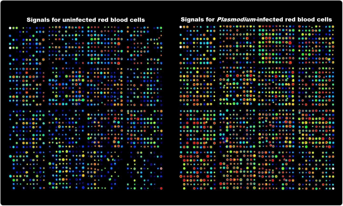 Antibody array data showing activation of kinases in human red blood cells infected with the malaria parasite.  CREDIT RMIT University