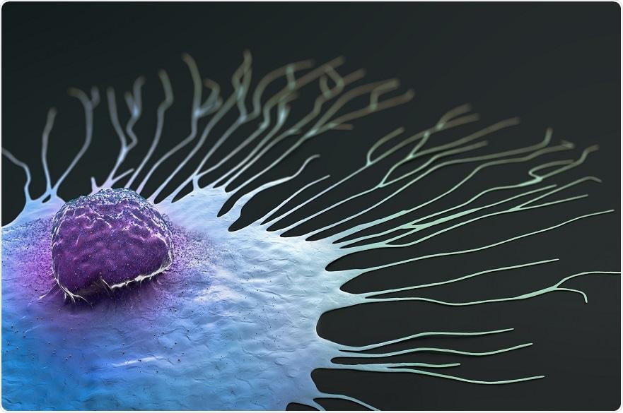 O gene podia prever a resposta do tratamento em determinados pacientes de cancro da mama