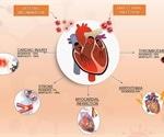 Cardiovascular disease in COVID-19