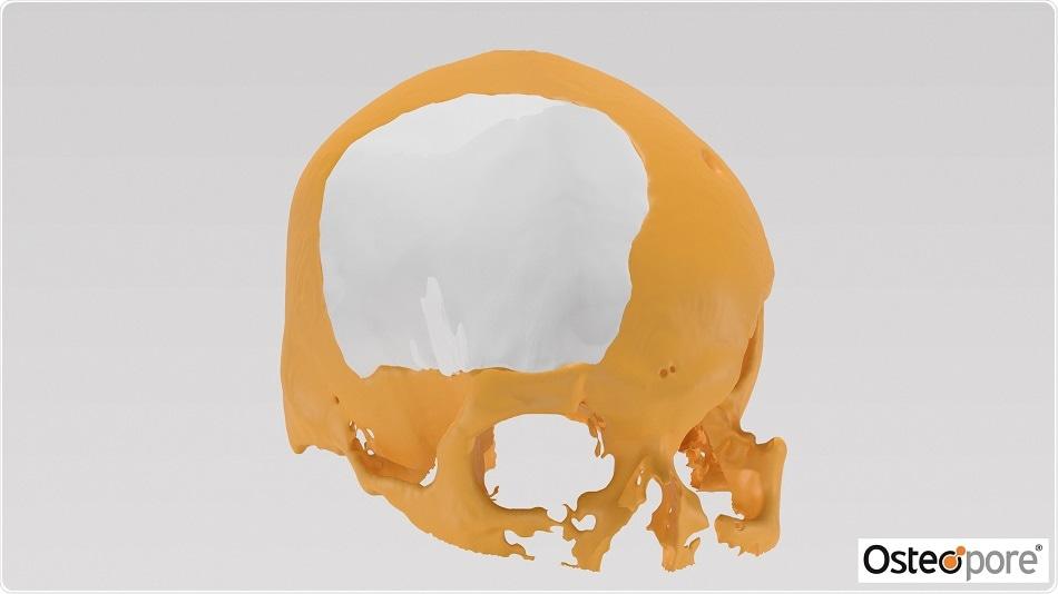Osteopore announces success of its 3D-printed PCL bone implant in cranioplasty procedure