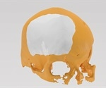 Osteopore announces success of its 3D-printed PCL bone implant in cranioplasty procedure
