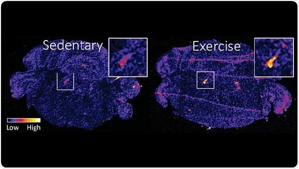Exercise confers stress resilience by increasing brain protein levels