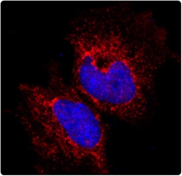 Research identifies protein molecule that could be responsible for aggressive breast cancers