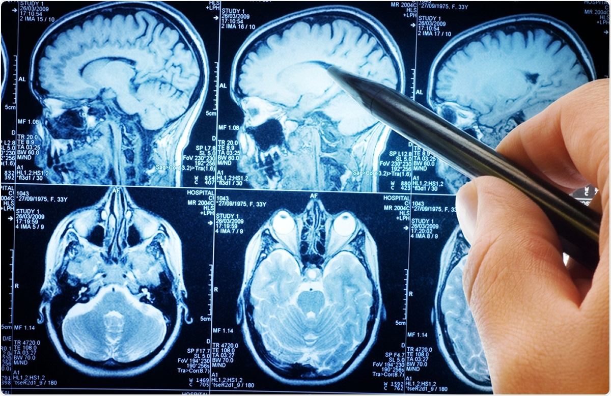 Study: Volumetric brain differences in clinical depression in association with anxiety: a systematic review with meta-analysis. Image Credit: Triff / Shutterstock