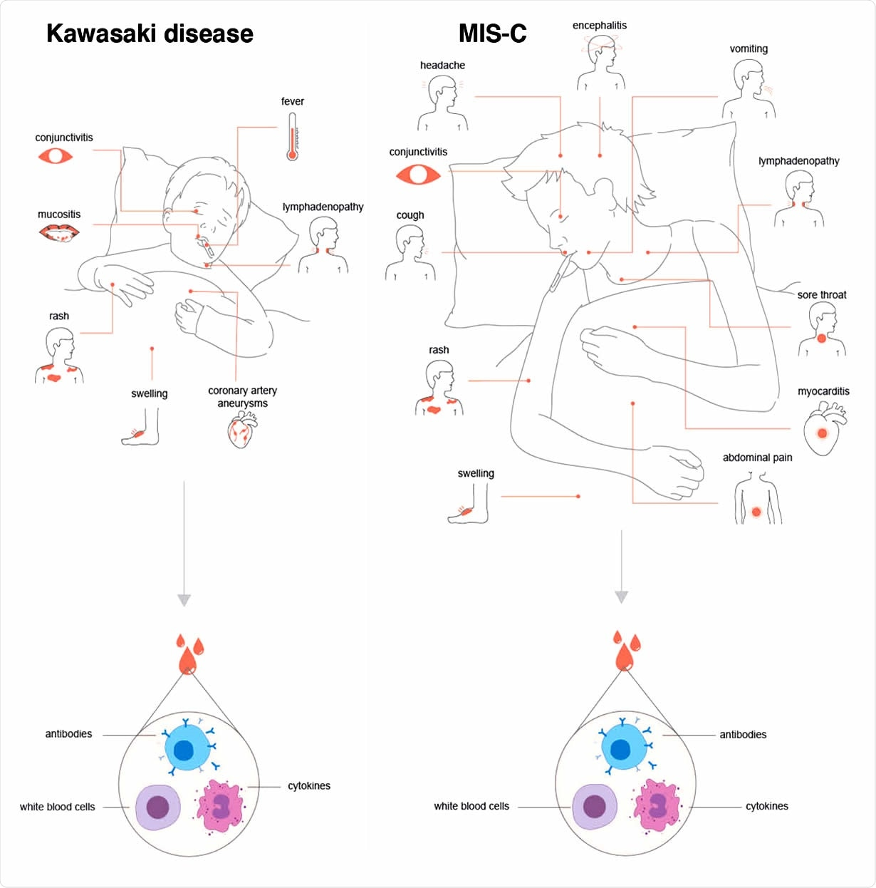 MIS-C has overlapping features with Kawasaki disease