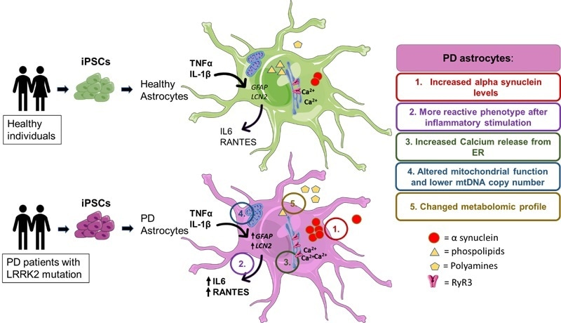 Study links brain astrocyte dysfunction to Parkinson's disease pathology