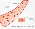 What are Liquid Biopsies?