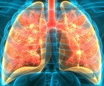 What are Lung Organoids?