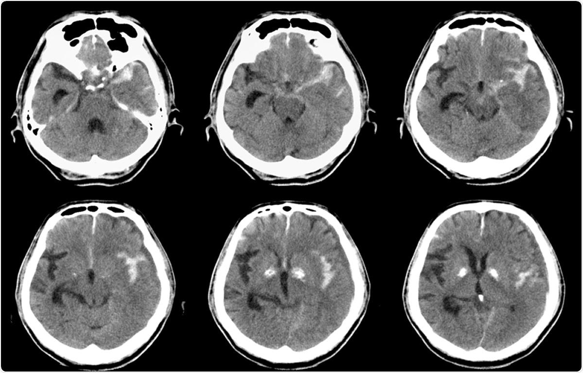 Computed tomography (CT) of brain : Left SAH (Subarachnoid hemorrhage). Image Credit: MossStudio / Shutterstock