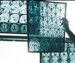 A potential new way of treating Alzheimer's Disease
