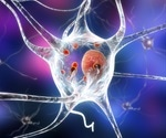 Parkinson's disease diagnosed after SARS-CoV-2