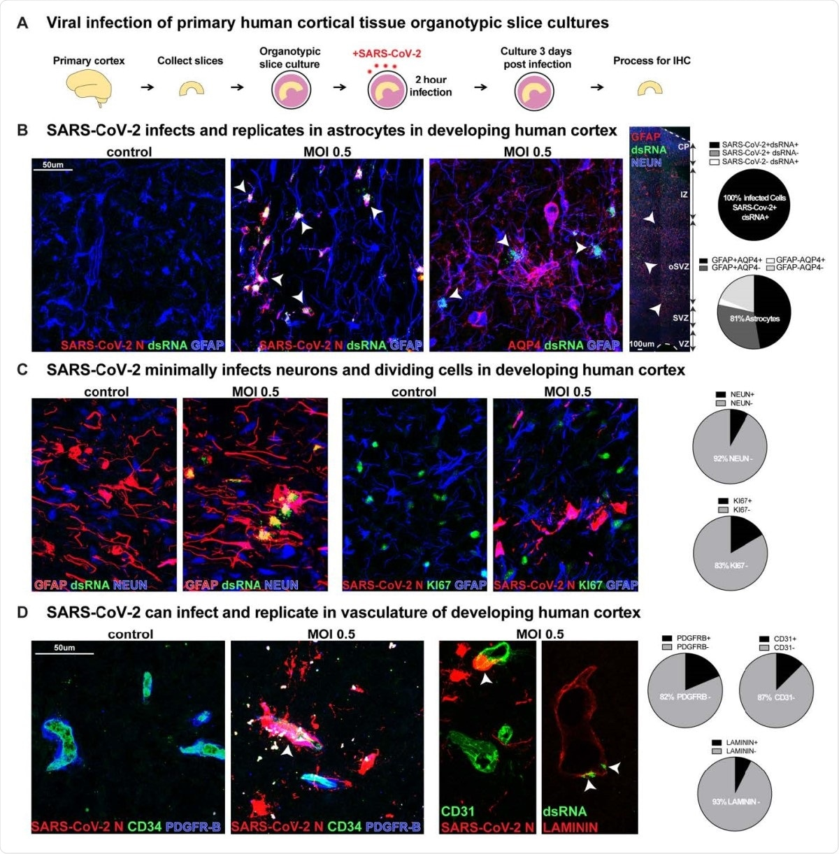 SARS-CoV-2 Infects Astrocytes in Developing Human Cortex. A) Experimental paradigm for viral infection of human cortical tissue. Primary cortical tissue was acutely sectioned and cultured at the air-liquid interface. The next day tissue was infected with SARS-CoV-2 at MOI 0.5 and cultured for 72 hours before being collected and processed. B) SARS-CoV-2 infects GFAP+AQP4+ astrocyte cells in the developing human cortex, which are predominantly located in the subventricular zone (SVZ), where />81% of cells assayed expressed markers of astrocytes. 100% of infected cells expressed both SARS-CoV-2+ nucleocapsid (N) antibody and double-stranded (ds)RNA antibody. White arrowheads indicate dsRNA+GFAP+ infected astrocytes (dsRNA+SARS-CoV-2 N+