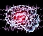 Sudden Unexpected Death in Epilepsy (SUDEP)