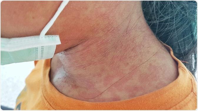 Skin of rubella patient. Image Credit: Akkalak Aiempradit / Shutterstock