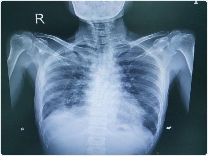 affezione polmonare