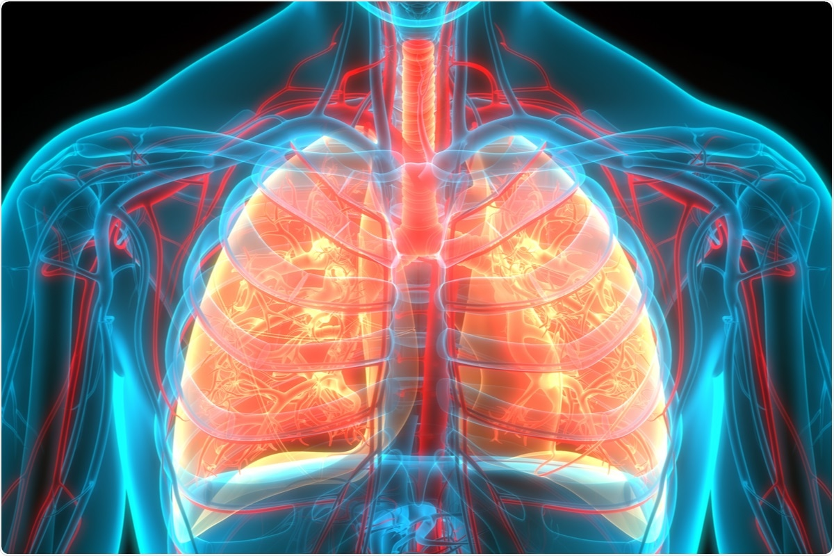 Study: Characteristics of changes in circulating markers of alveolar epithelial and endothelial injury in acute respiratory distress syndrome with COVID-19. Image Credit: / Shutterstock