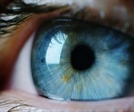 Diabetes and Vision