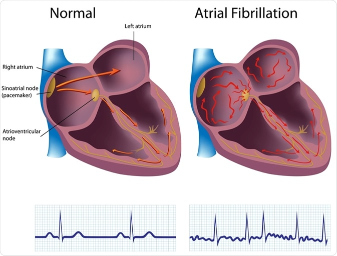 Atrial fibrillation. Image Credfit: Alila Medical Media / Shutterstock