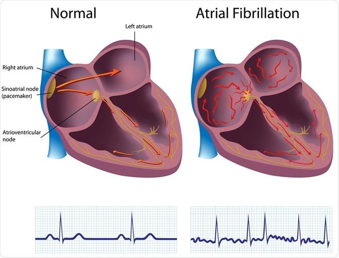 Fibrillazione atriale. Immagine Credfit: Media medici/Shutterstock di Alila
