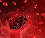 Fibrin immunotherapy may resolve blood clotting induced by SARS-CoV-2