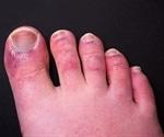 Chilblain-like lesions and COVID-19