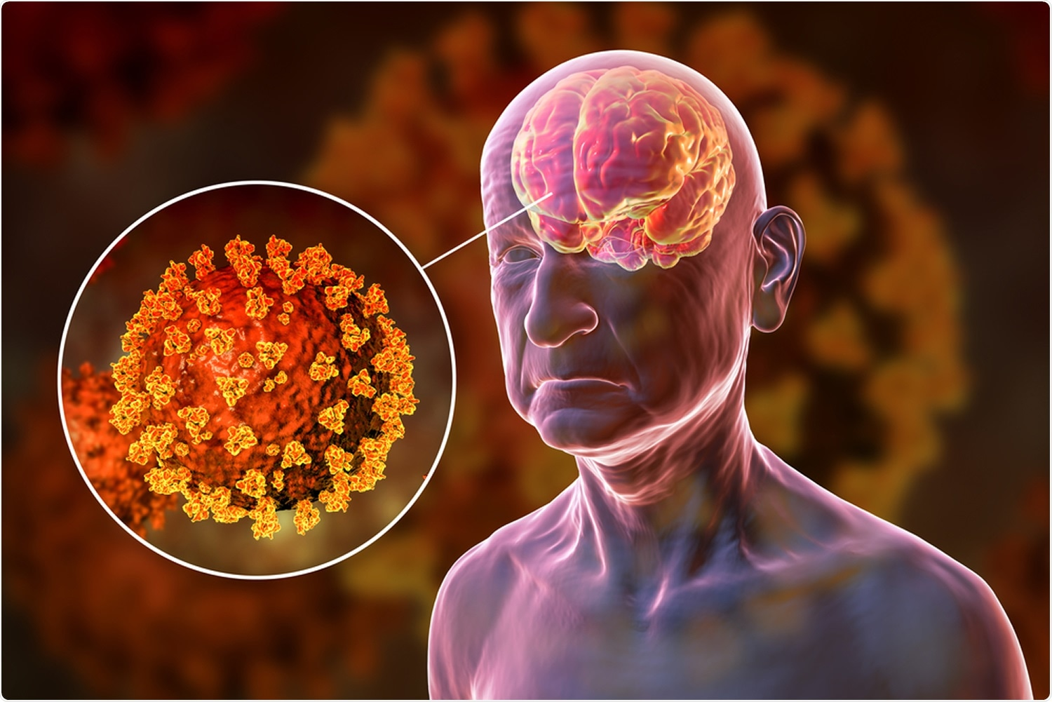 Review: COVID-19 and its effects on neurological functions. Image Credit: Kateryna Kon / Shutterstock