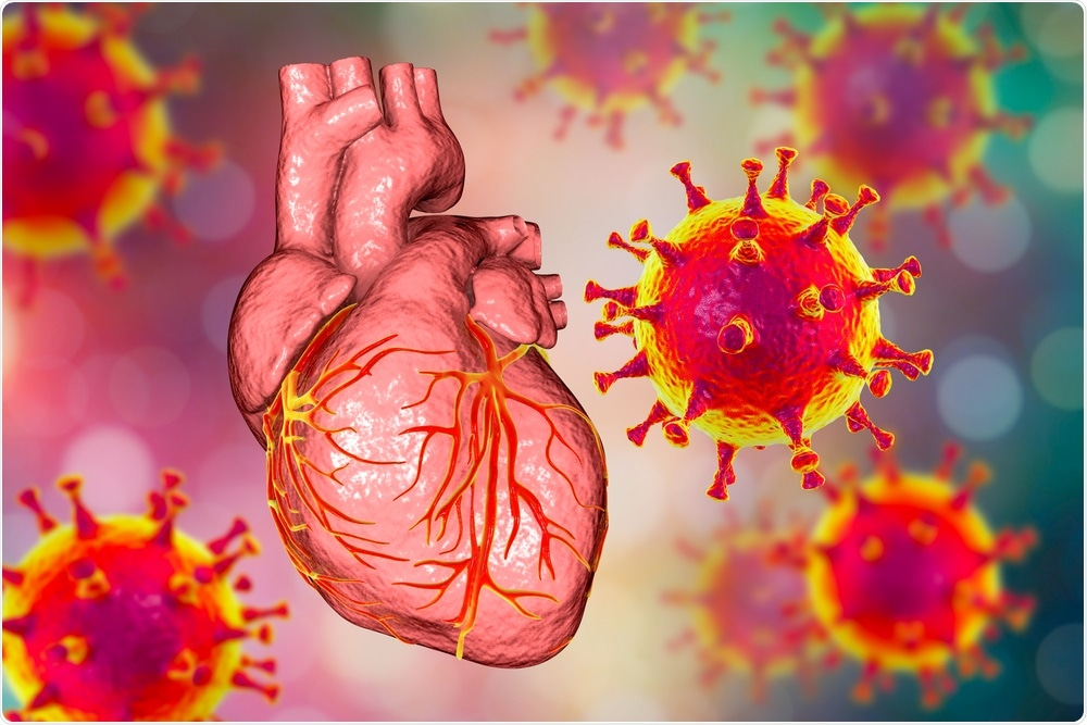 Study: Myocarditis after BNT162b2 mRNA Vaccine against Covid-19 in Israel. Image Credit: Kateryna Kon / Shutterstock