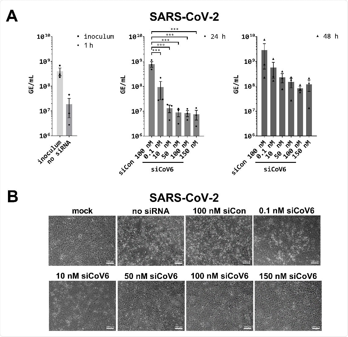 Inhibition of SARS‐CoV‐2 replication by siCoV6. (A) The replication of SARS‐CoV‐2 (BetaCoV/Munich/BavPat2‐ChVir984‐ChVir1017/2020) was investigated by quantitative RT‐PCR in Vero E6 cells. Vero E6 cells were transfected with 0.1–150 nM siCoV6 or 100 nM siCon and infected 24 h after transfection with SARS‐CoV‐2 at a MOI of 0.01. Subsequently, the cells were washed, supplemented media were added and viral RNA was isolated from the culture supernatant at 1 hpi, 24 hpi and 48 hpi. Genome equivalents per mL (GE/mL) were determined by quantitative RT‐PCR. The mean ± SEM of three independent experiments is shown. The statistical significance was determined by a univariate analysis of variance (one‐way ANOVA); ***p <0.001. (B) Cell morphology observation. Cells were fixed 48 h after infection with SARS‐CoV‐2 and the cytopathic effect (CPE) of viral infection was documented by transmitted light microscopy. Representative data from three independent experiments are shown. Scale bar: 200 μm.