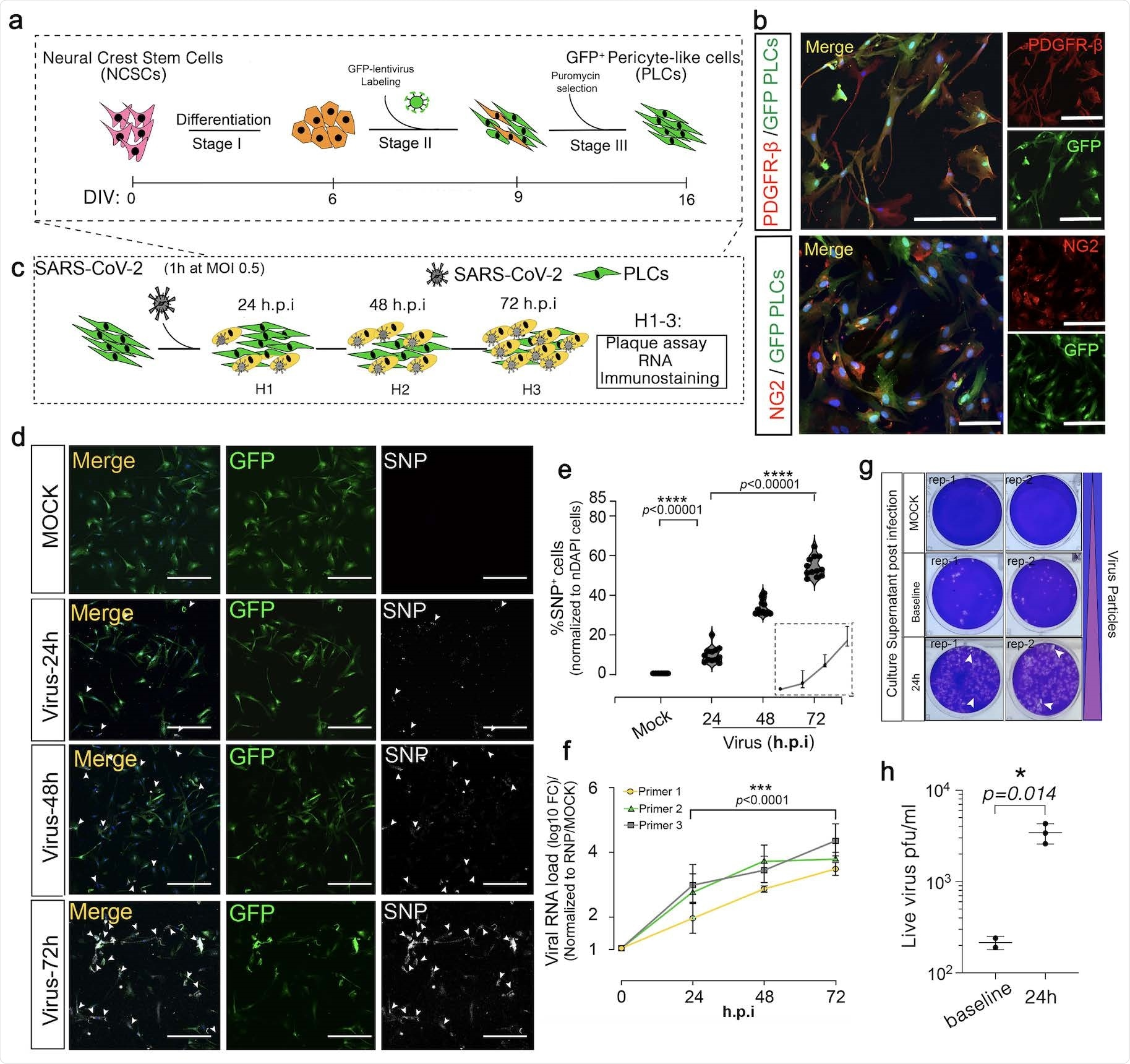 SARS-CoV-2 productively infects pericyte-like-cells.