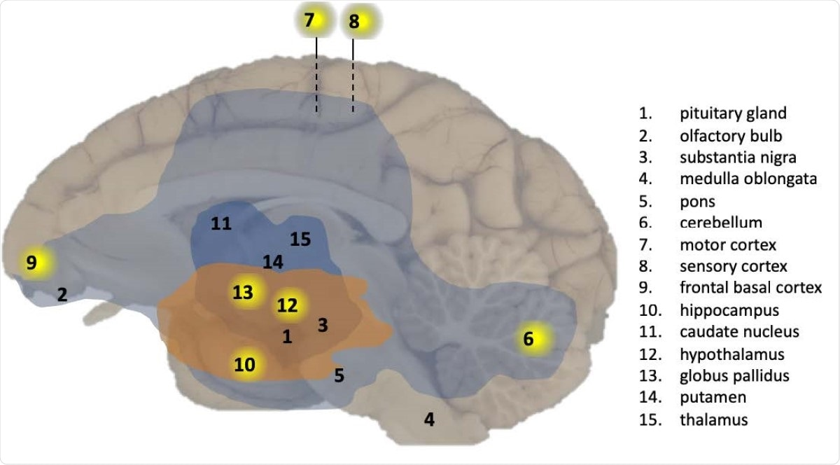 Overview of CNS effects by SARS-CoV-2 exposure in a macaque brain. Presence of viral RNA was investigated in multiple regions of the brain as indicated by the numbers. Viral RNA-positive regions in cynomolgus macaque C3 are indicated by a yellow background. The analysed brain regions are indicated with a number. Brain areas with T-cells (CD3+) and activated microglia (Mamu-DR+) are shown in light blue (mild expression) and dark blue (moderate expression), respectively. Brain areas with Lewy bodies (a-synuclein+) are shown in orange.