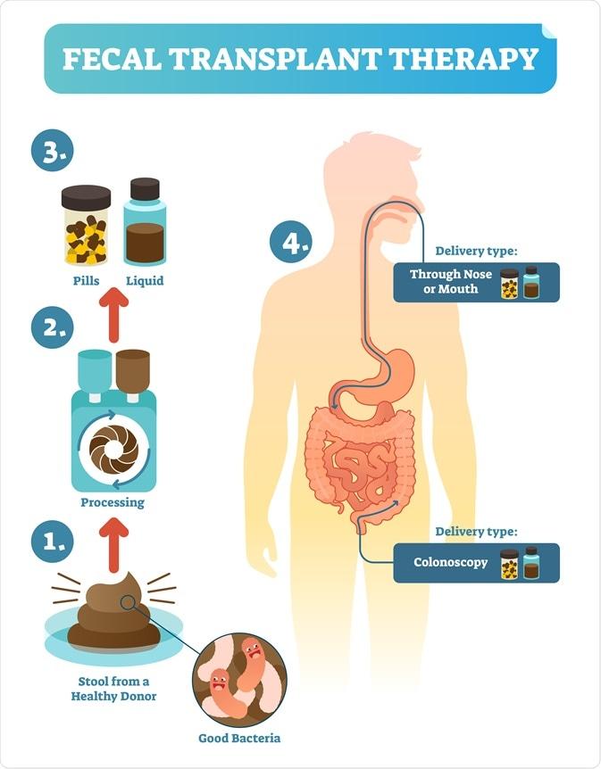 transplantação fecal