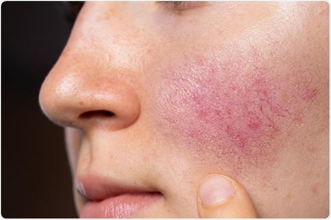 A symptom of rosacea. Image Credit: sruilk / Shutterstock