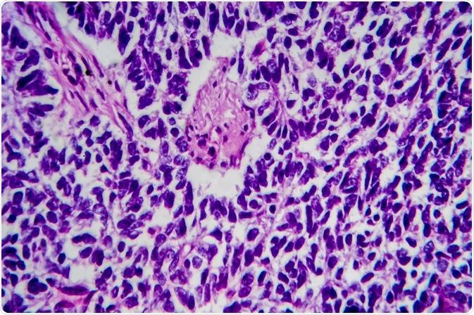 tumeur de wilms