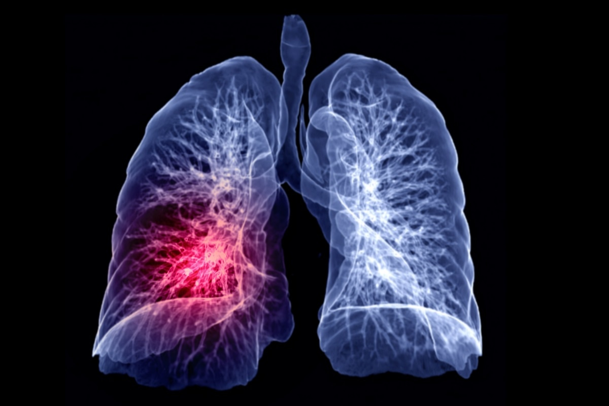 Study: Identification of common key genes and pathways between Covid-19 and lung cancer by using protein-protein interaction network analysis. Image Credit:  samunella / Shutterstock