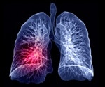 COVID-19 and lung cancer have a common pathway, say researchers