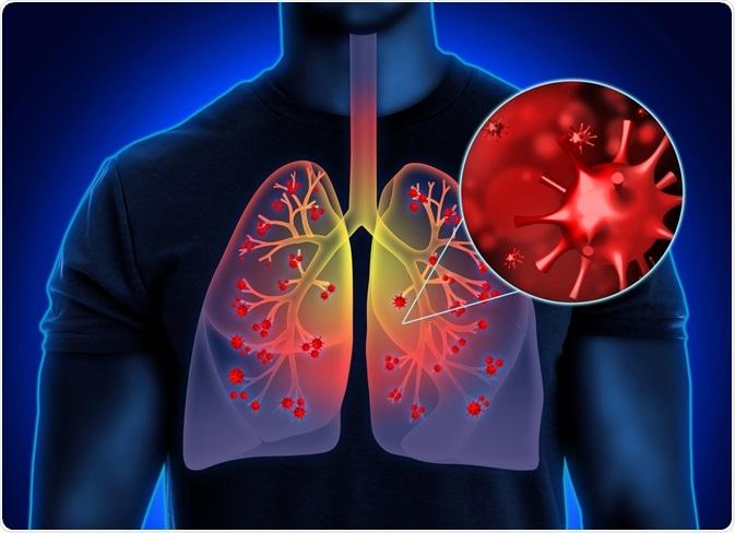 polmoni sars-cov-2