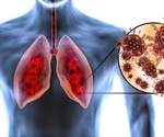 What Does COVID-19 do to the Lungs?