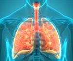 Sarcoidosis Treatment