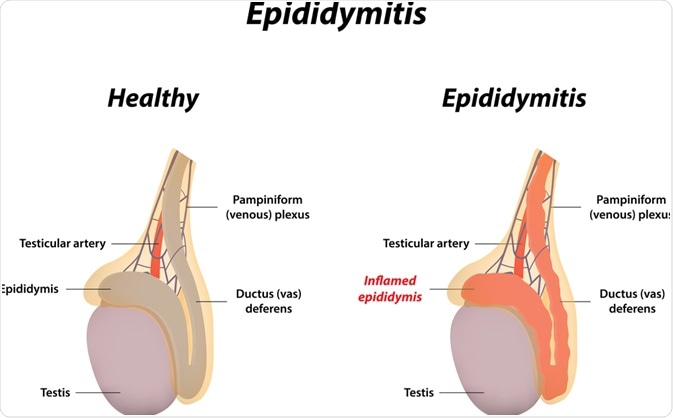 Epididymitis. Image Credit: joshya / Shutterstock