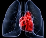 Incidence of cardiometabolic and pulmonary events in UK has lowered due to COVID-19
