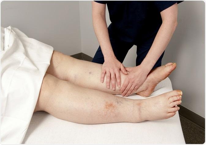 Lymphedema of the legs. Image Credit: futurewalk / Shutterstock