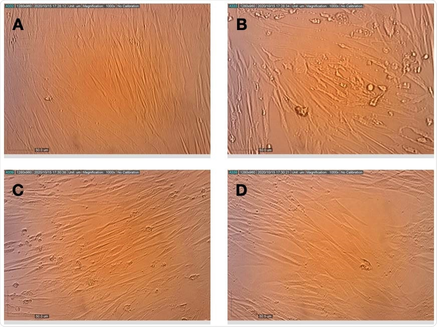 Effects of terpenes and CBD applied post-infection on the replication and cytopathic effect of HCoV-229E in MRC-5 cells. (A) Healthy MRC-5 cells, (B) MRC-5 cells at 72 h after infection with HCoV-229E, (C) MRC-5 cells that were pretreated with terpenes, photographed 72 h after infection with HCoV-229E and (D) MRC-5 cells that were pretreated with terpenes and CBD, photographed 72 h after infection with HCoV- 229E.