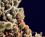 Study shows single dose of mRNA vaccine may suffice for those with prior SARS-CoV-2 infection