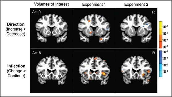 Forecasting changes in stock prices based on brain activity