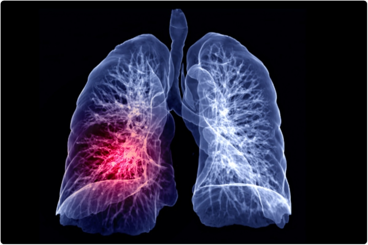 Study: Endotracheal application of ultraviolet A light in critically ill severe acute respiratory syndrome coronavirus-2 patients: A first-in-human study. Image Credit: samunella / Shutterstock