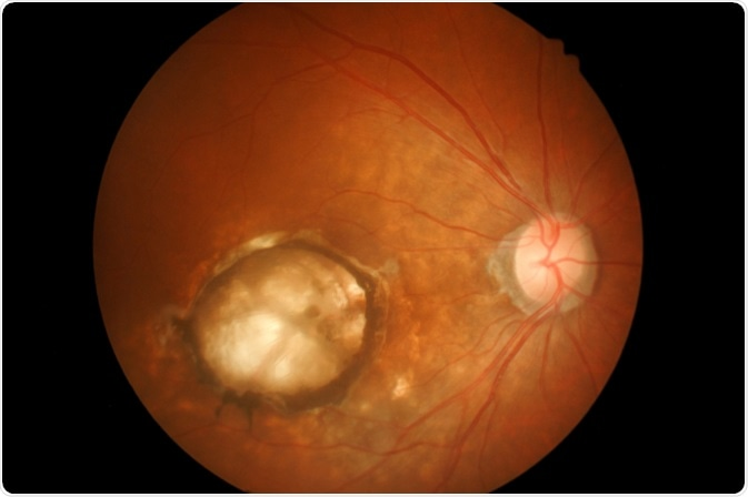 Medical photo Age-related macular degeneration (AMD). Image Credit: memorisz / Shutterstock