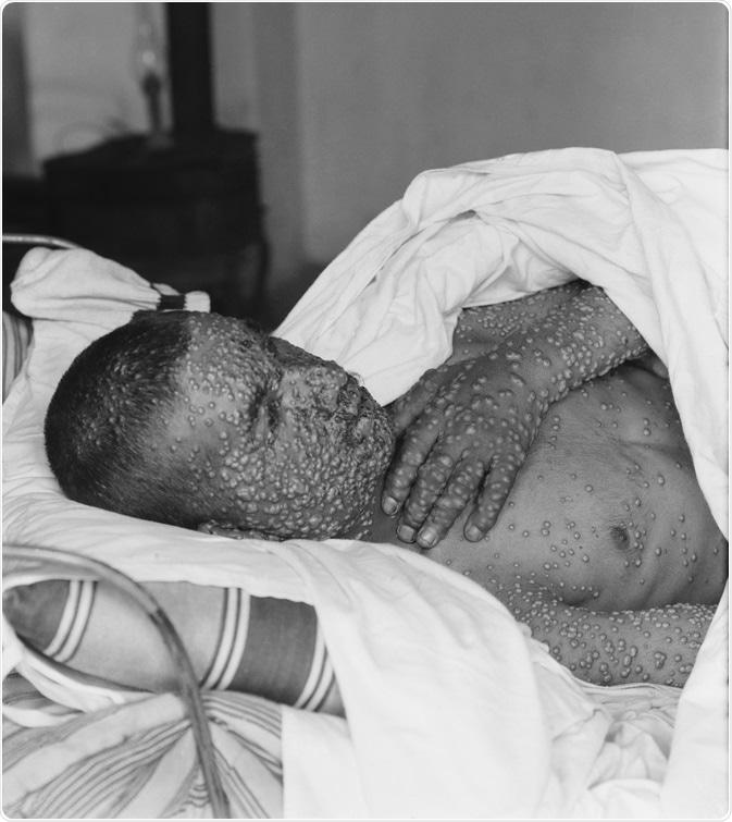 A face, os braços e as mãos pesadamente marcados de uma vítima da varíola em Palestina, CA 1900-1925. Crédito de imagem: Coleção/Shutterstock de Everett